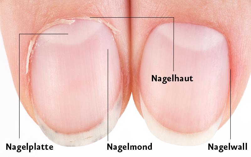 Fingernagel-Detailansicht-vorher-nachher