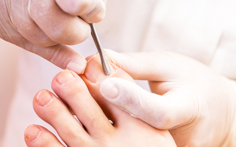 Fußpflege mit dem ERBE Löffel